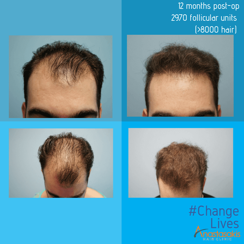 μεταμόσχευση μαλλιών FUE αποτελέσματα επέμβασης μετά από 12 μήνες