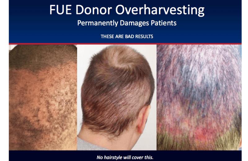 Κίνδυνοι κατά την εγχείρηση μεταμόσχευσης μαλλιών από μη ιατρούς