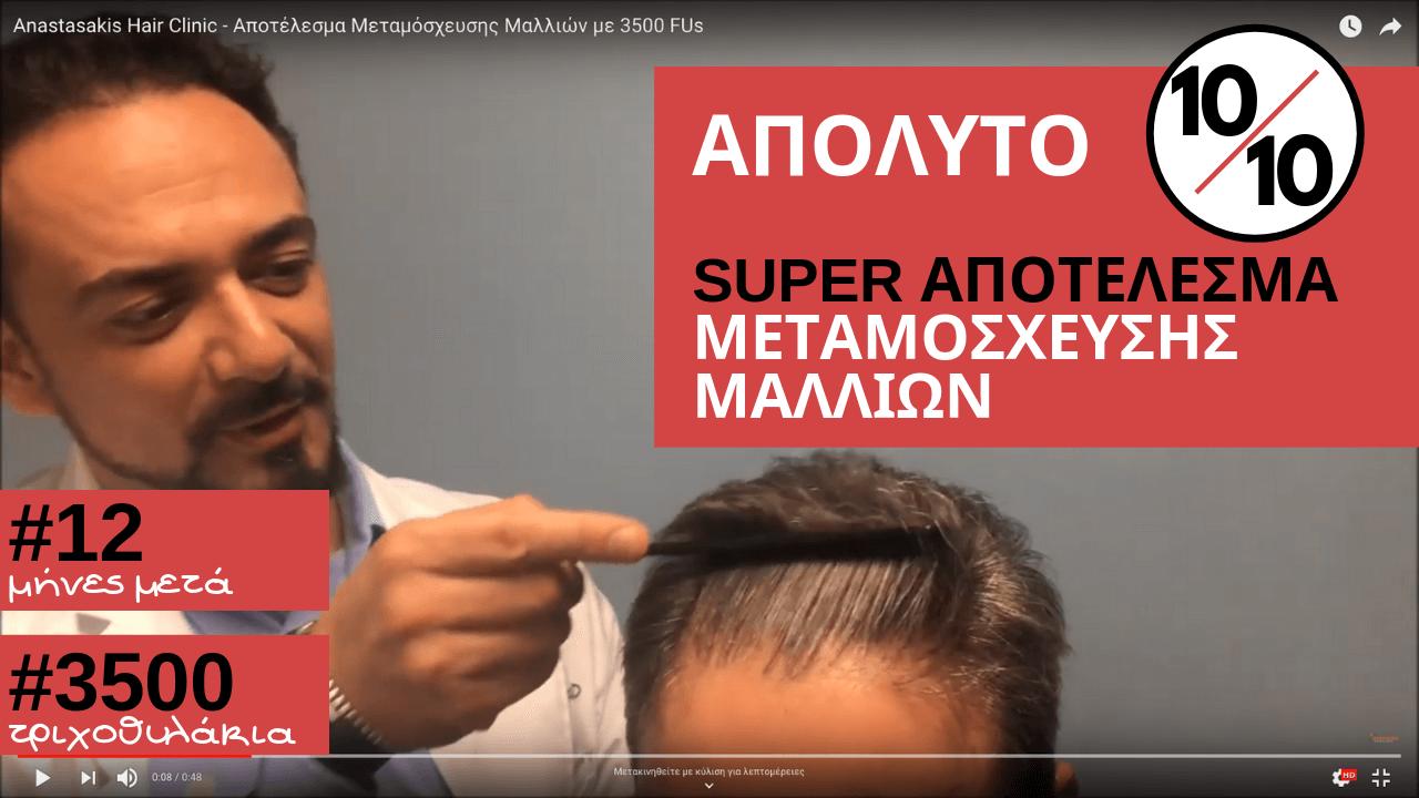 10_10- 3500 τθ-αποτελεσμα μεταμοσχευση μαλλιων