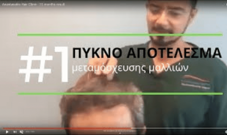 PYKNO APOTELESMA-15 MHNES _3050τθ-μεταμοσχευση μαλλιων