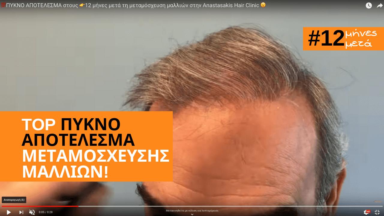 TOP PYKNO APOTELESMA-12 MHNES -μεταμοσχευση μαλλιων