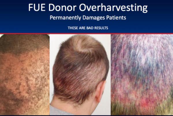 Η μεταμόσχευση μαλλιών σε πειρατικές κλινικές εγκυμωνεί πολλούς κινδύνους.