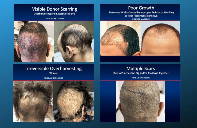 Μη-επιδιορθώσιμες βλάβες σε περιστατικά που υποβλήθηκαν σε μεταμόσχευση μαλλιών από μη-ιατρούς σε πειρατικές «κλινικές»