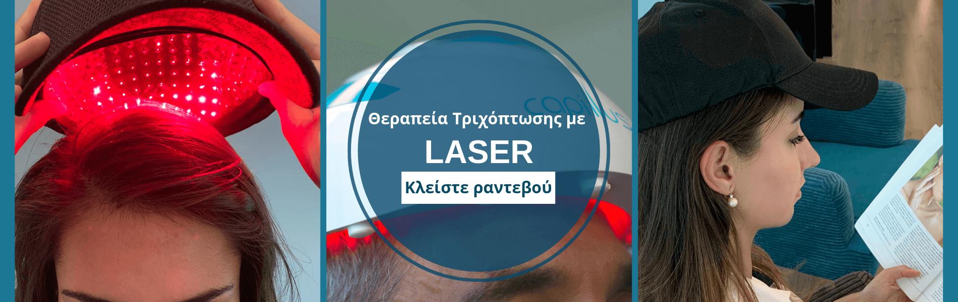 κλειστε ραντεβου για θεραπείες Τριχόπτωσης με laser στην Anastasakis Hair Clinic