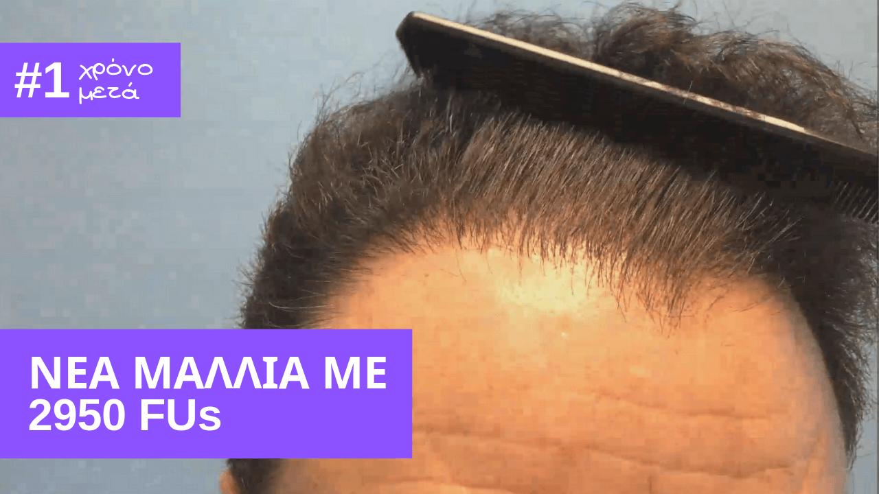1 year later-2950 fus πυκνο αποτελεσμα μεταμοσχευσης μαλλιων, νεα μαλλια