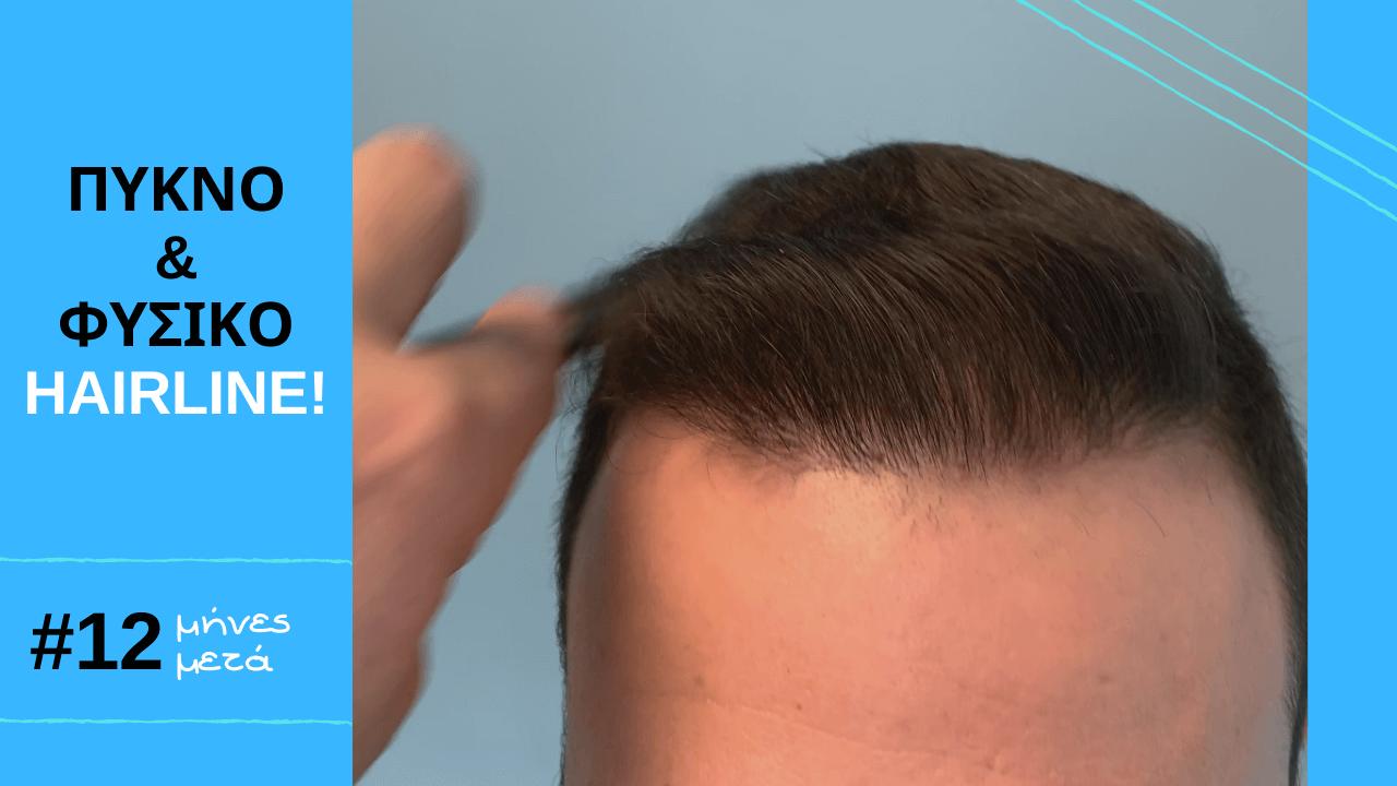 εντυποσιακο περιστατικο μετα από 1 χρονο ενα πυκνο και φυσικο hairline