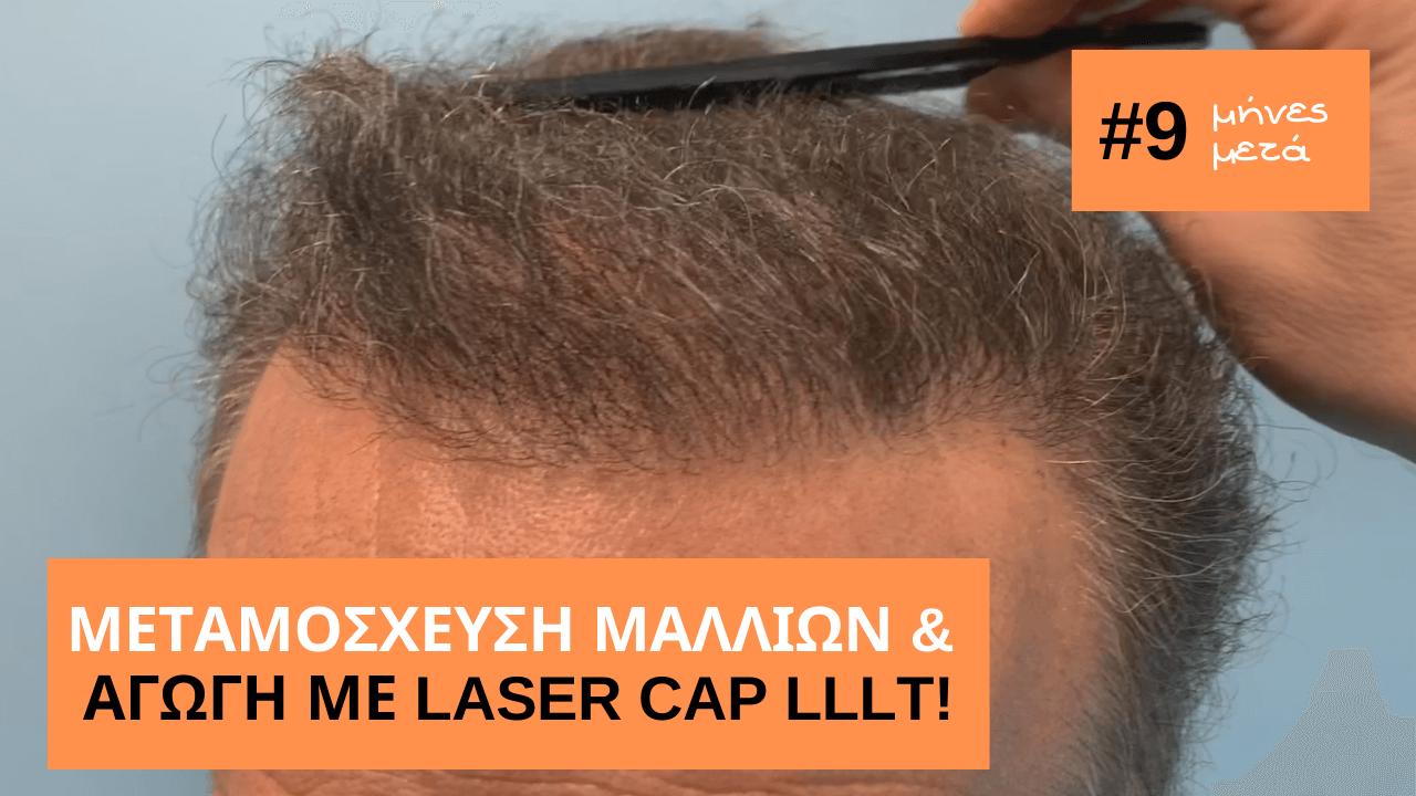 εντυπωσιακο αποτελεσμα μεταμοσχευσης μαλλιων και αγωγής με laser 9 μηνες μετα