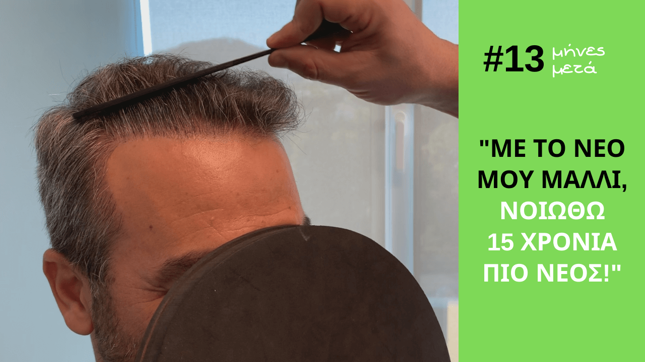 dimitris-13months anastasakis hair clinic result