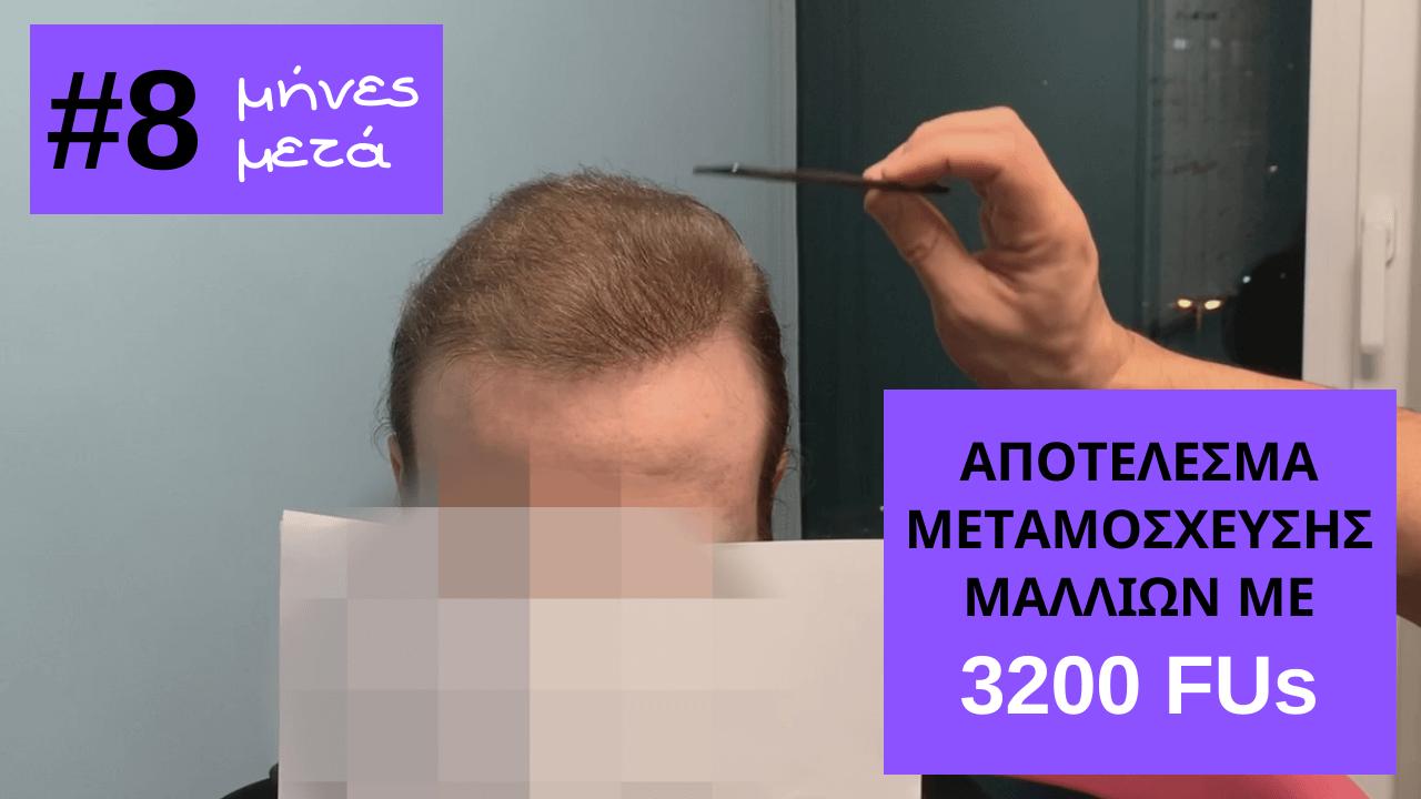 το εντυπωσιακο αποτελεσμα του Λεωνιδα στην Anastasakis Hair Clinic