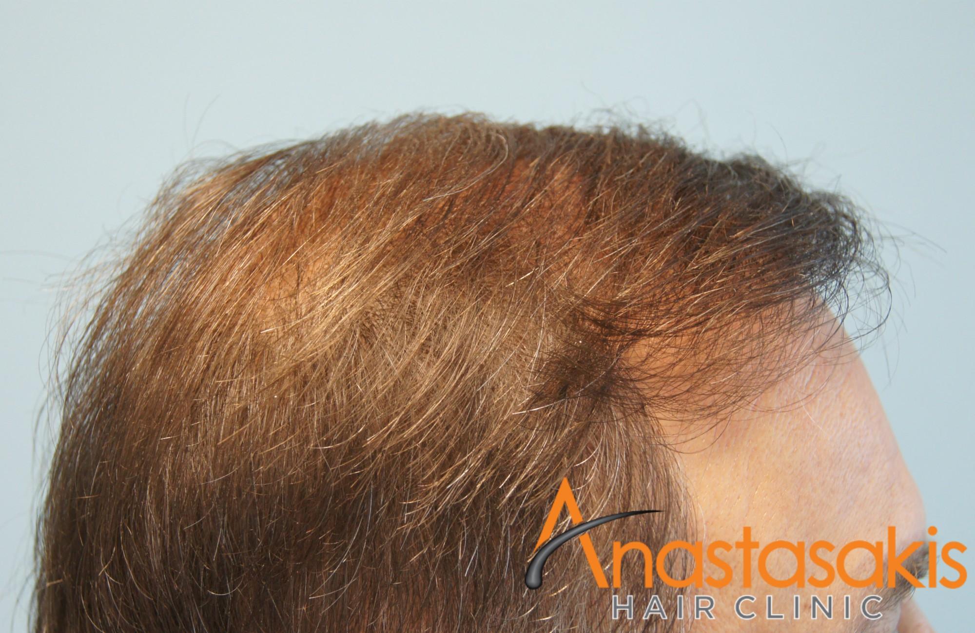 άνδρας μετά την επέμβαση μαλλιών fut με 3500fus δεξί προφίλ