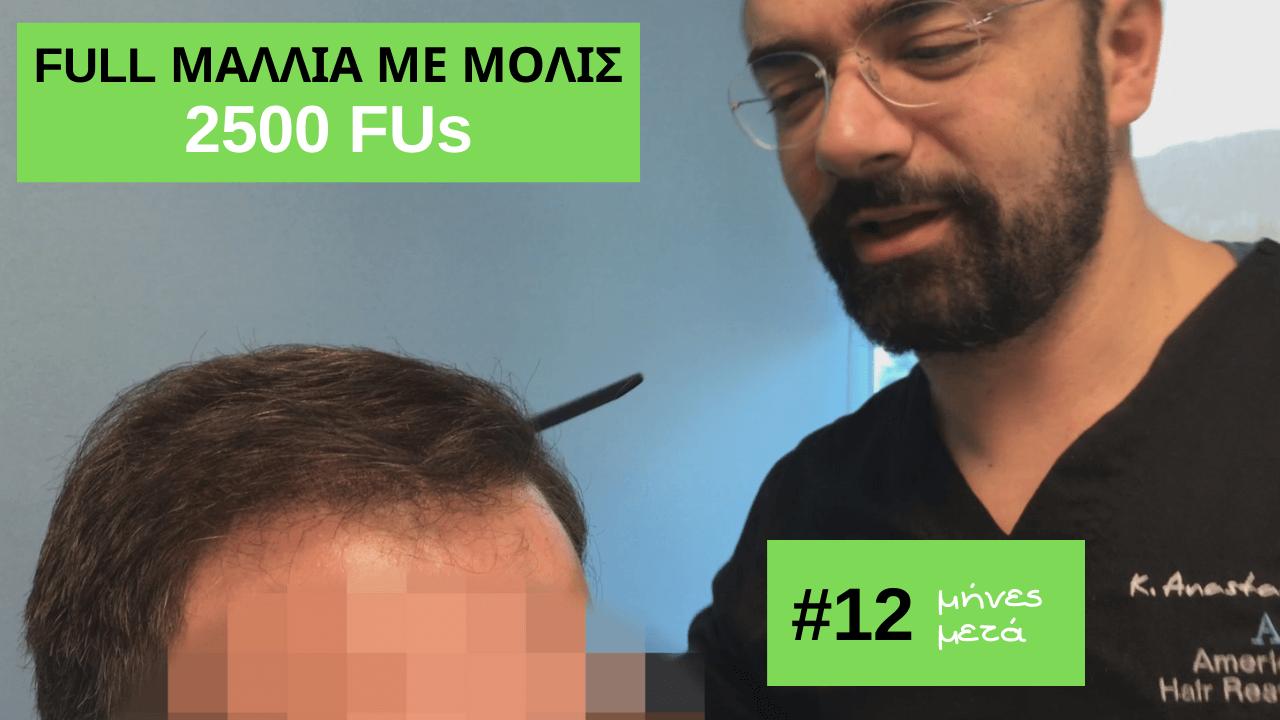 2500 τριχοθυλακια, αποτελεσμα της anastasakis hair clinic 12 μηνες μετα τη μεταμοσχευση μαλλιων