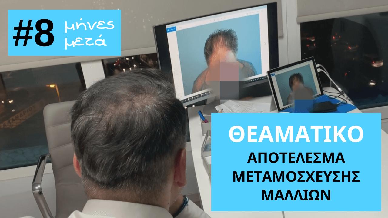 theamatiko-apotelesma-mm