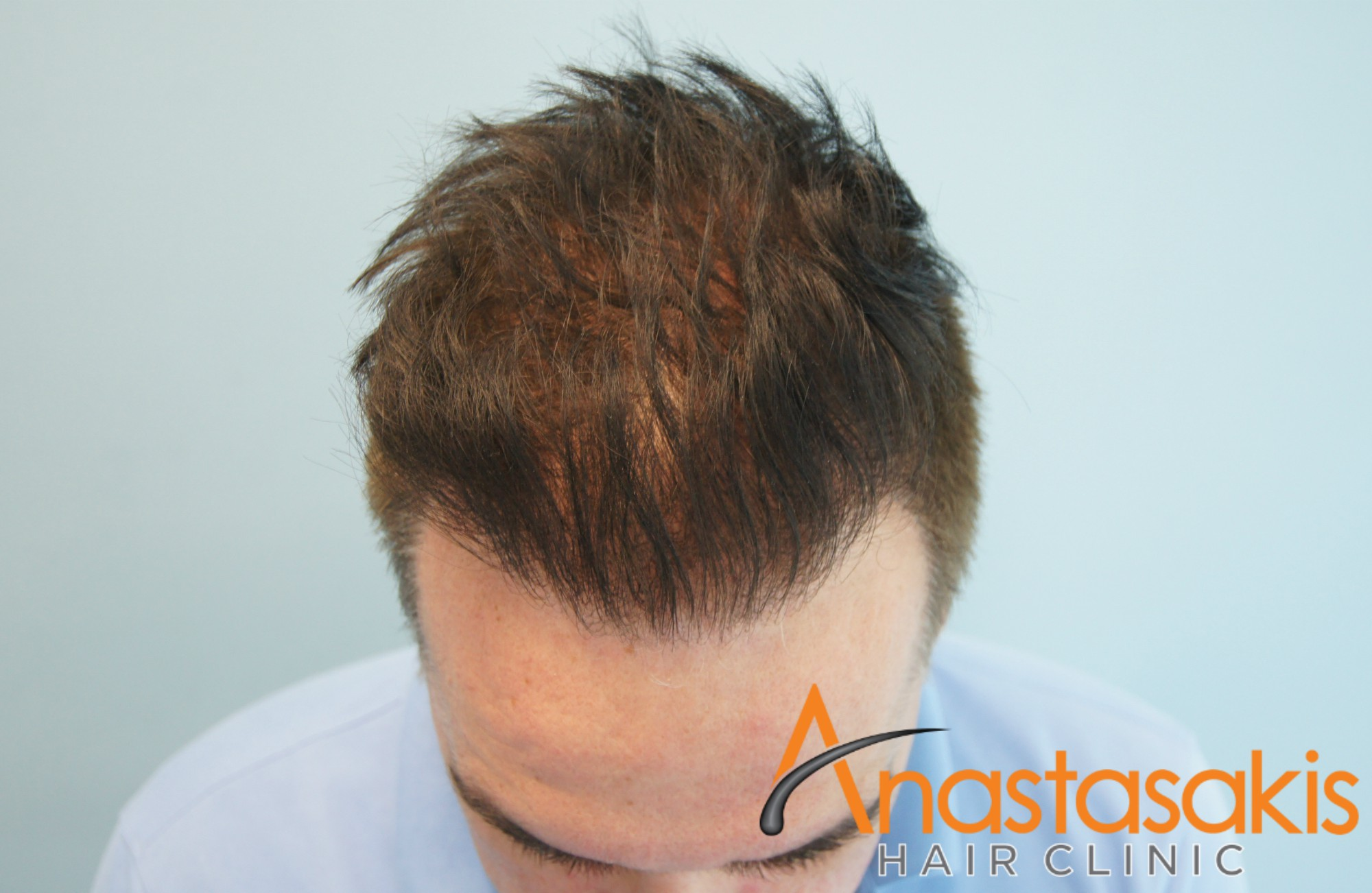 3500fus-result-anastasakis-hair-clinic-megasession