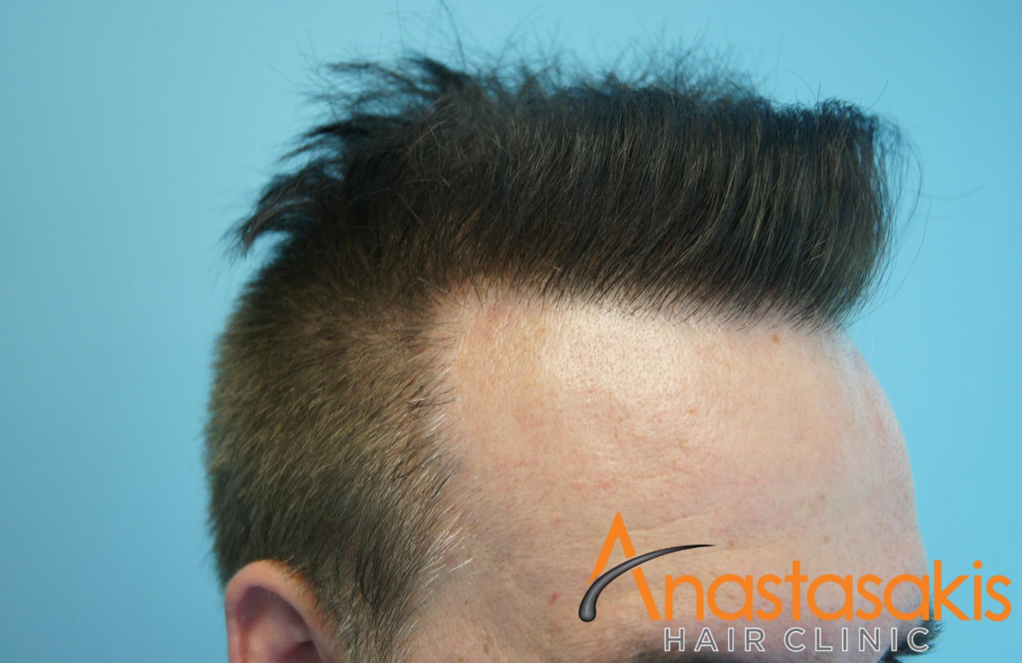 3500fus-result-anastasakis-hair-clinic-megasession
