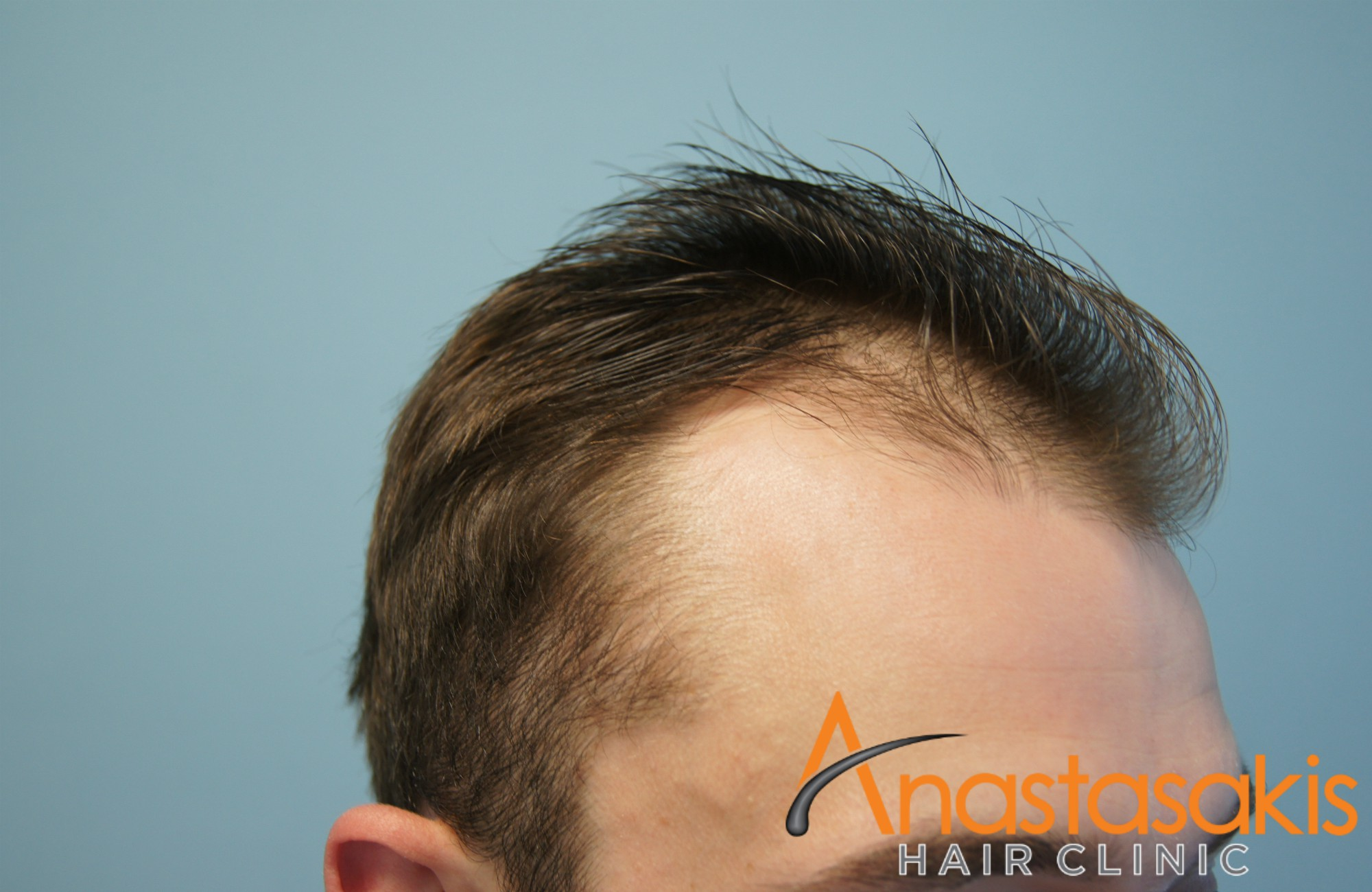 anastasakis-hair-clinic-1300fus-fuemethod-13months later