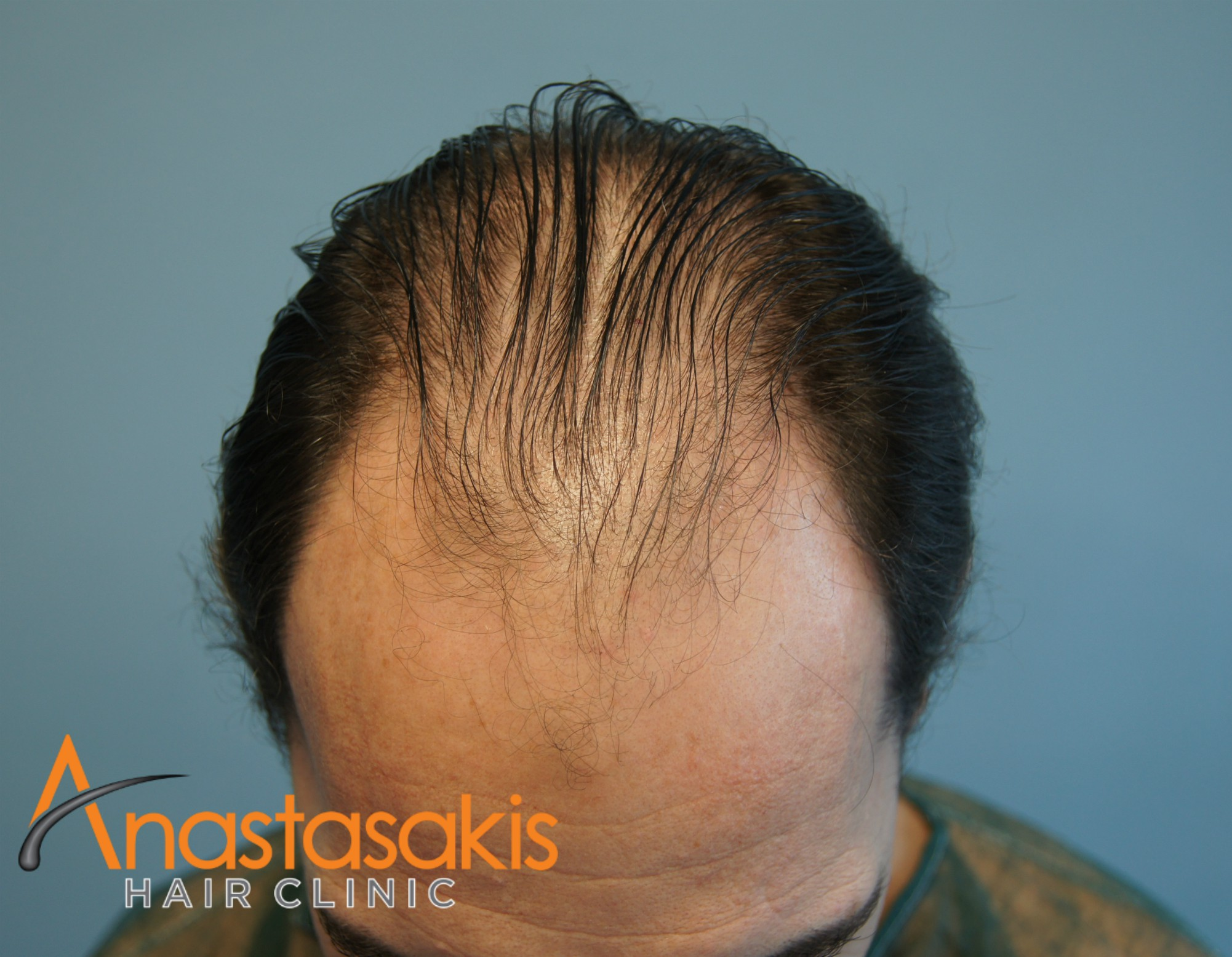 2530-FUS-result-anastasakis-hair-clinic-mar-fut