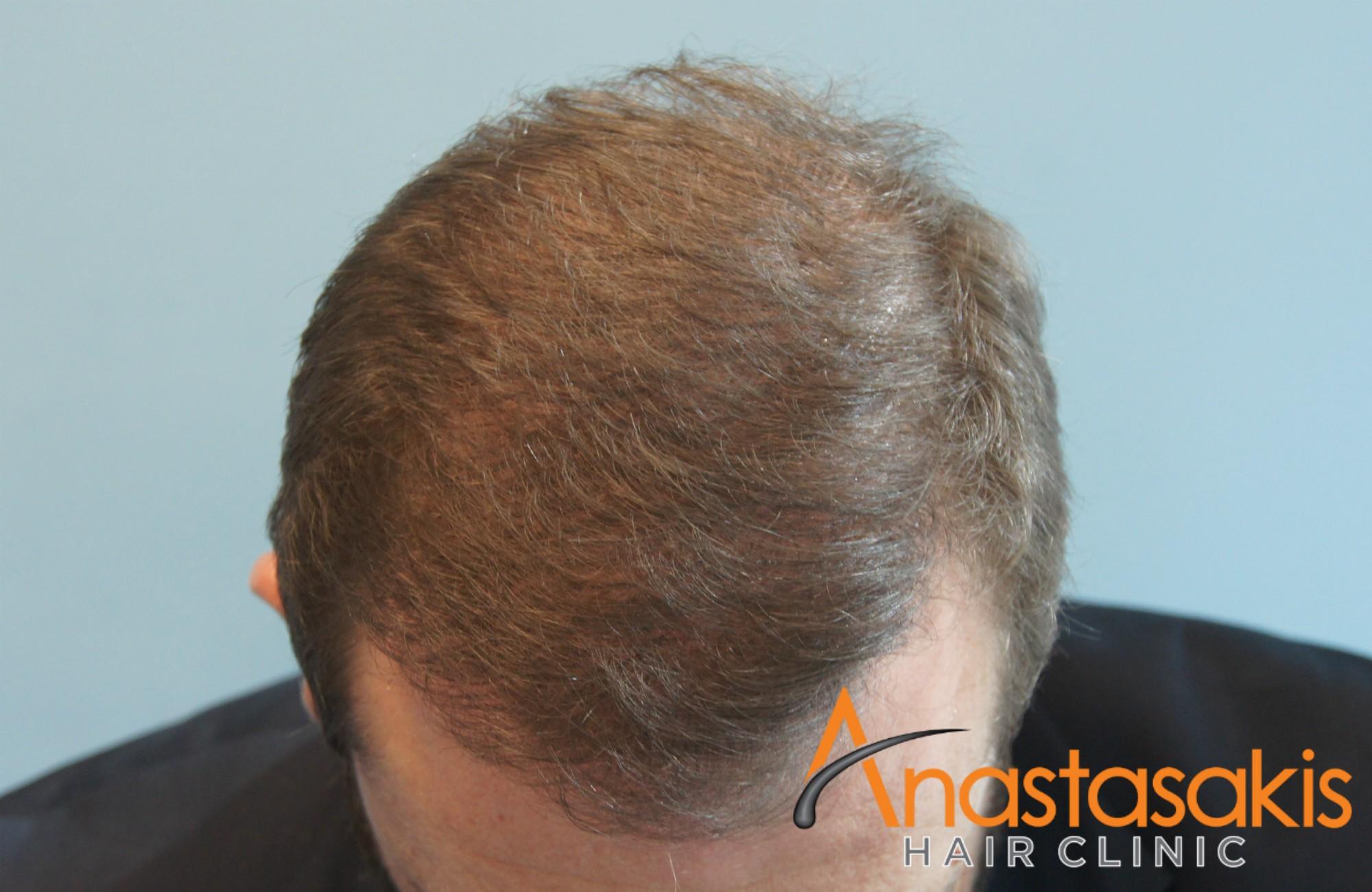 αποτέλεσμα ασθενούς στο μπροστά προφίλ μετά την επέμβαση μαλλιών fue με 3000fus