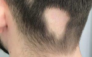 Ουλωτική αλωπεκία πίσω στο τριχωτό της κεφαλής , ένα σημείο