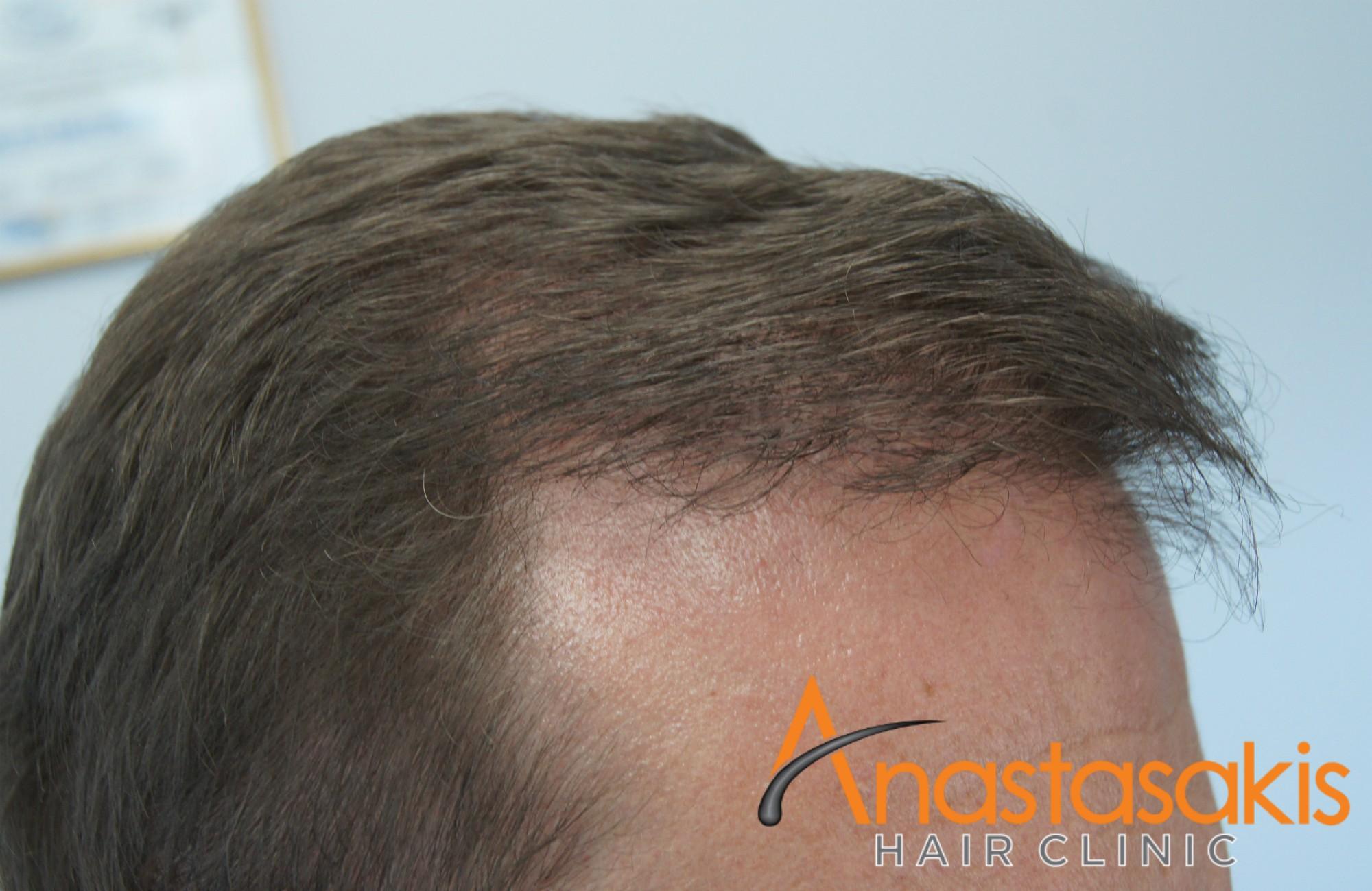 αποτέλεσμα ασθενούς στο δεξί προφίλ μετά την επέμβαση μαλλιών fue με 3000fus