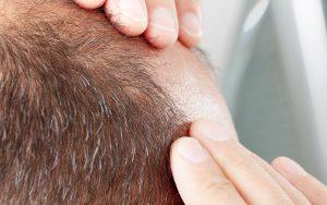Χρήση Ρομποτικής και δημιουργία τεχνητών τριχοθυλακίων στη μεταμόσχευση μαλλιών