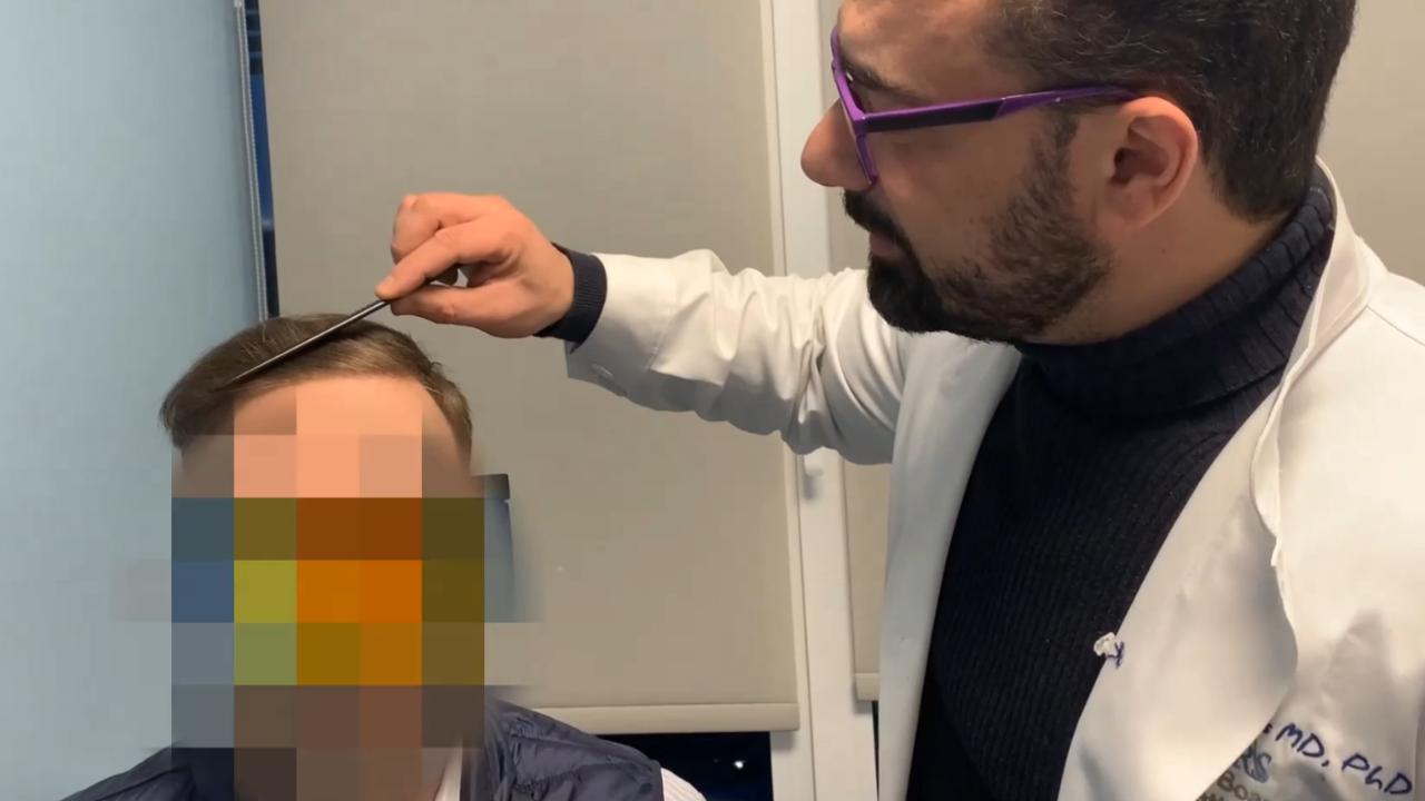 anastasakis hair clinic metamosxefsi mallion 3200 fus apotelesma 12 minon13