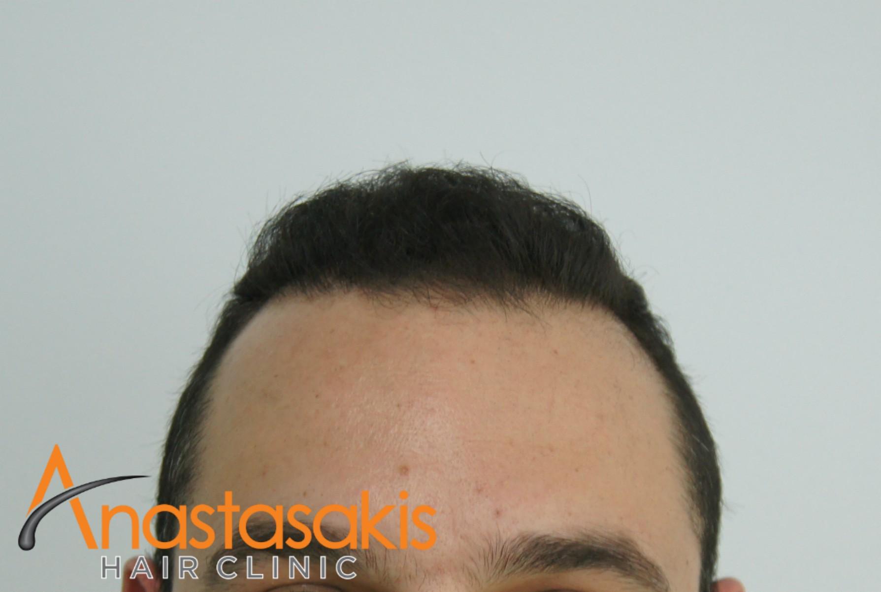 ασθενής μετά την εμφύτευση μαλλιών fue με 1600fus hairline