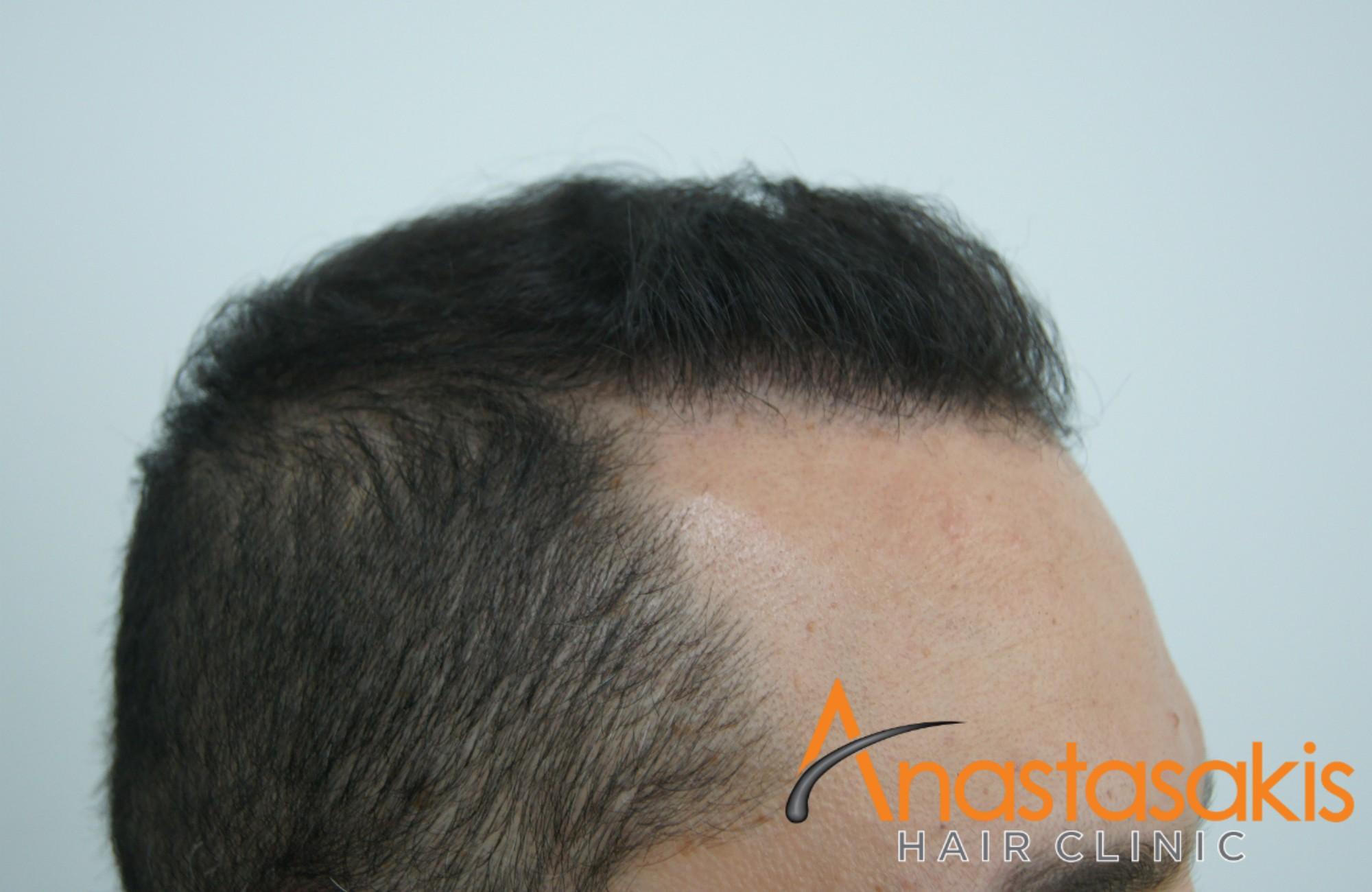 ασθενής μετά την εμφύτευση μαλλιών fue με 1600fus αριστερό προφίλ