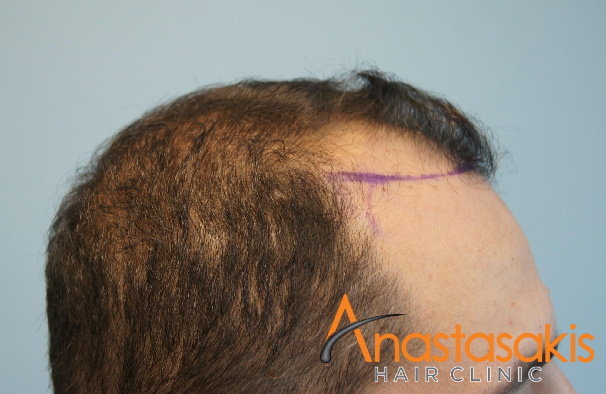 ασθενής πριν την εμφύτευση μαλλιών fue με 1600fus αριστερό προφίλ