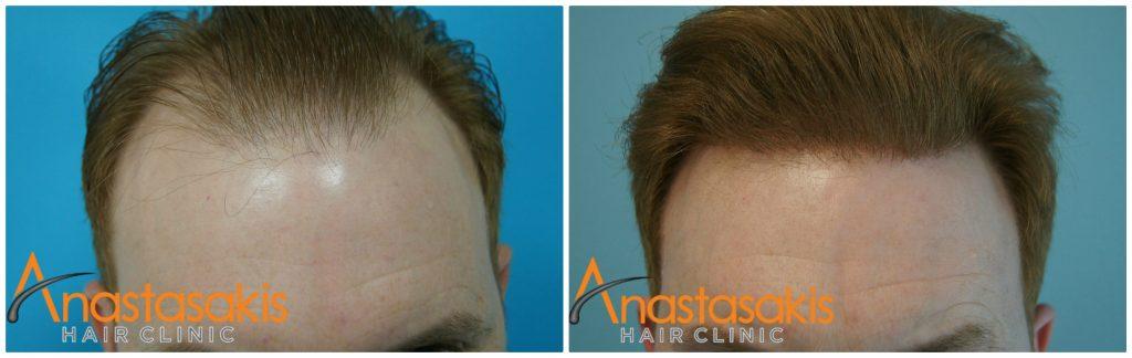 επιτυχής μεταμόσχευση μαλλιών πριν-μετά αναστασάκης hair clinic