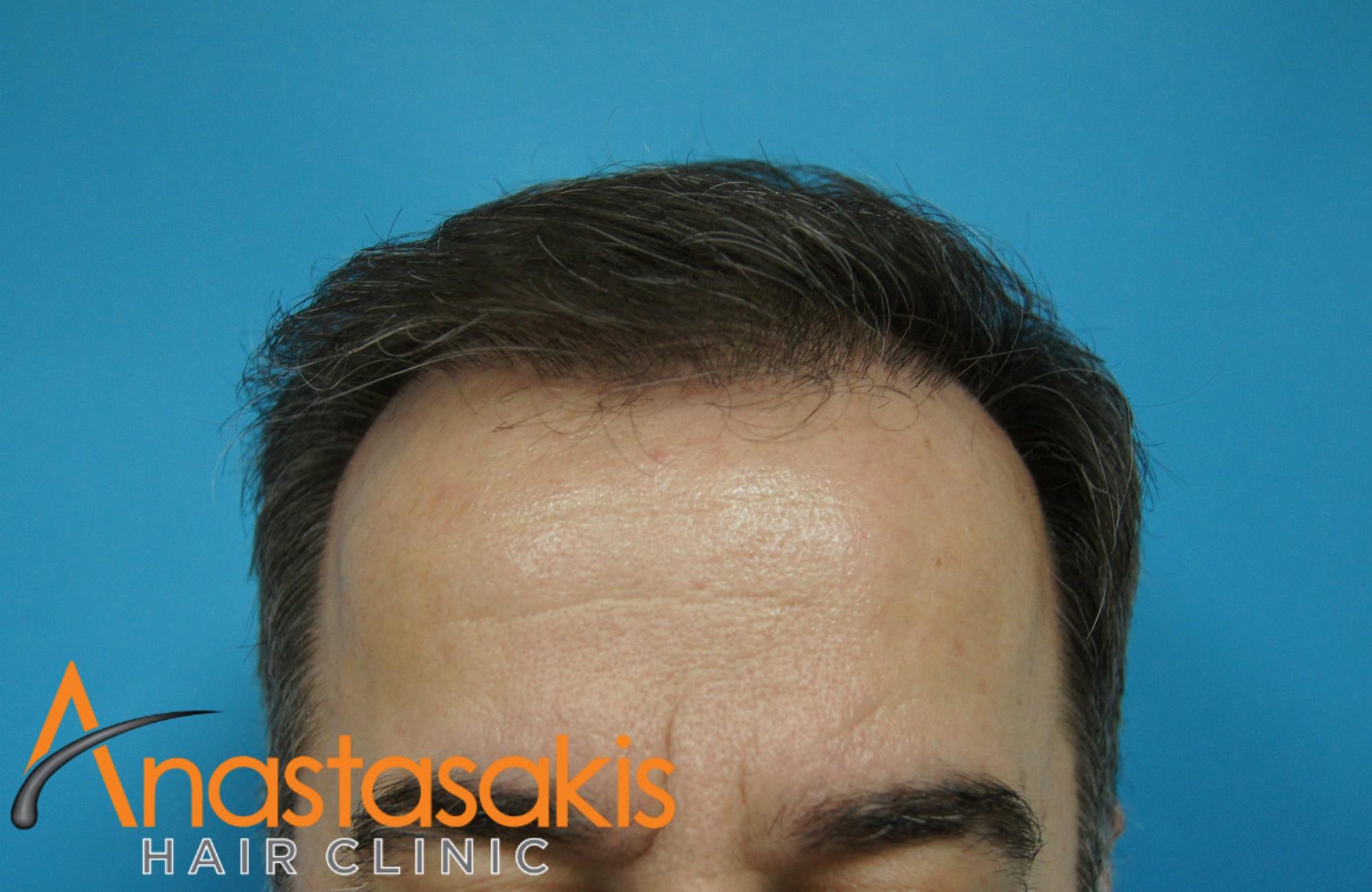 hairline ασθενους μετα τη μεταμοσχευση μαλλιων με 2000 fus