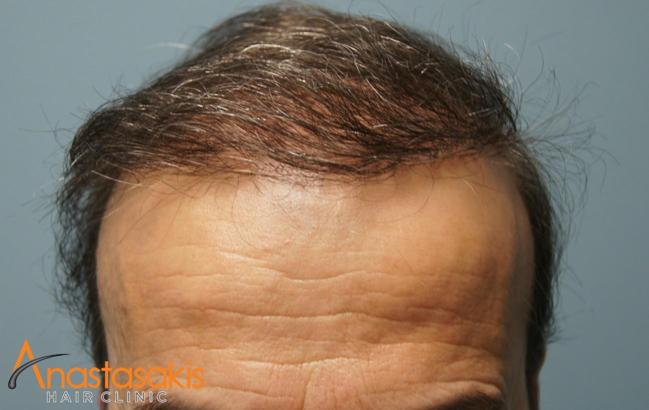 hairline ασθενους μετα τη μεταμοσχευση μαλλιων με 2500 fus