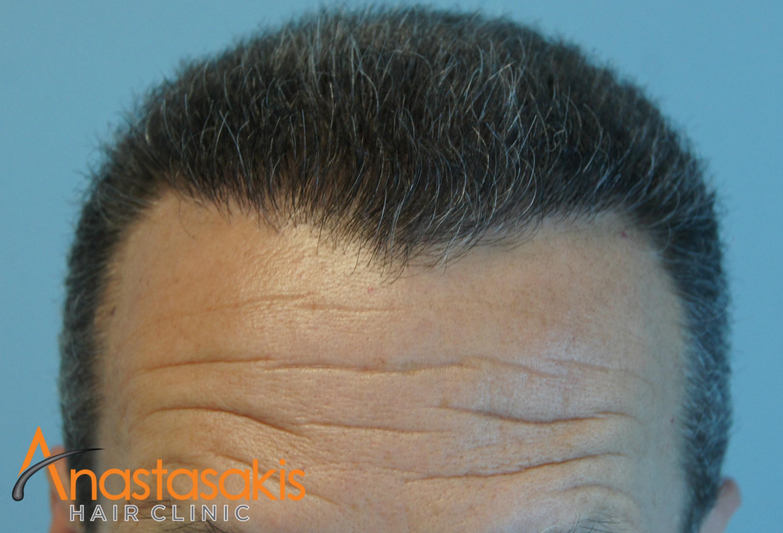 hairline ασθενους μετα τη μεταμοσχευση μαλλιων με 2300 fus