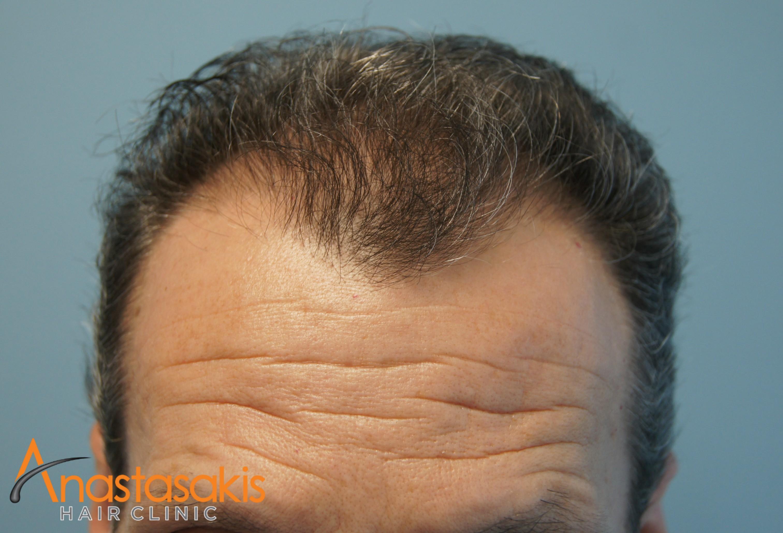hairline ασθενους πριν τη μεταμοσχευση μαλλιων με 2300 fus
