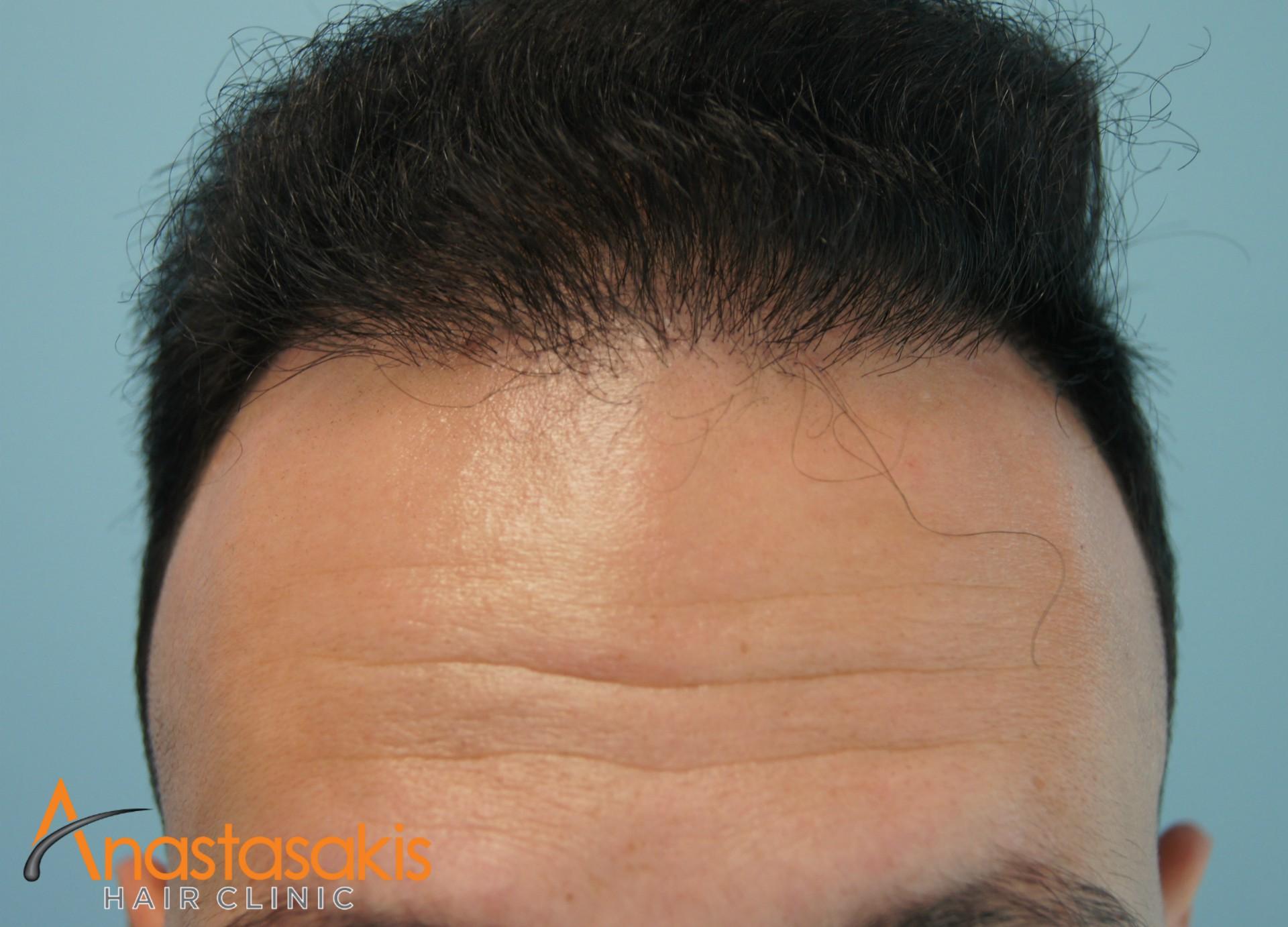 περιστατικο fue με 1200fus hairline μετά