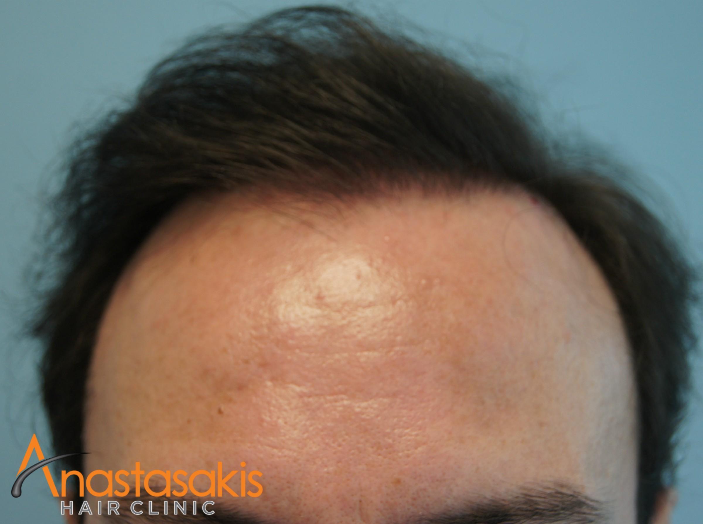 περιστατικό μετά την εμφύτευση μαλλιών fut με 3000fus hairline