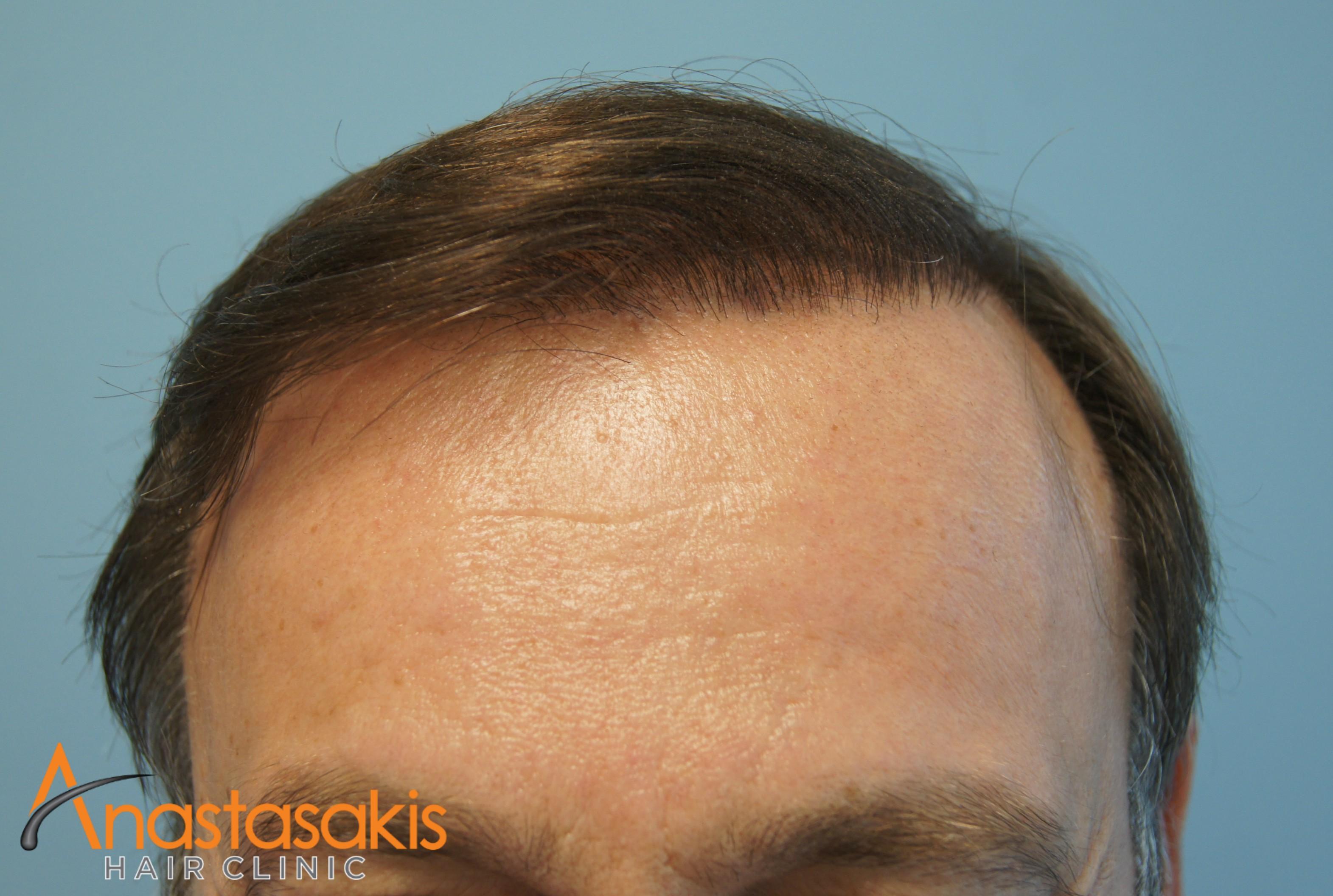 ασθενής μετα την μεταμόσχευση μαλλιών fut με 3500fus hairline