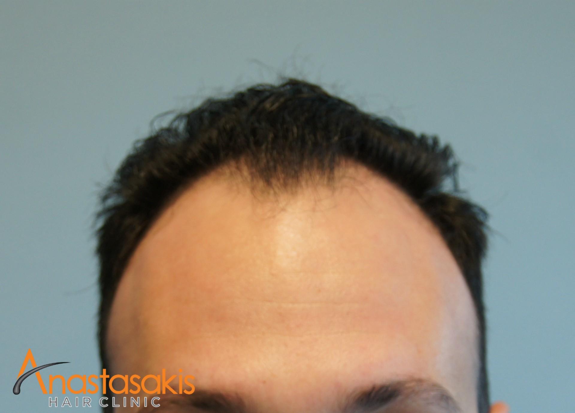 περιστατικο fue με 1200fus hairline πριν