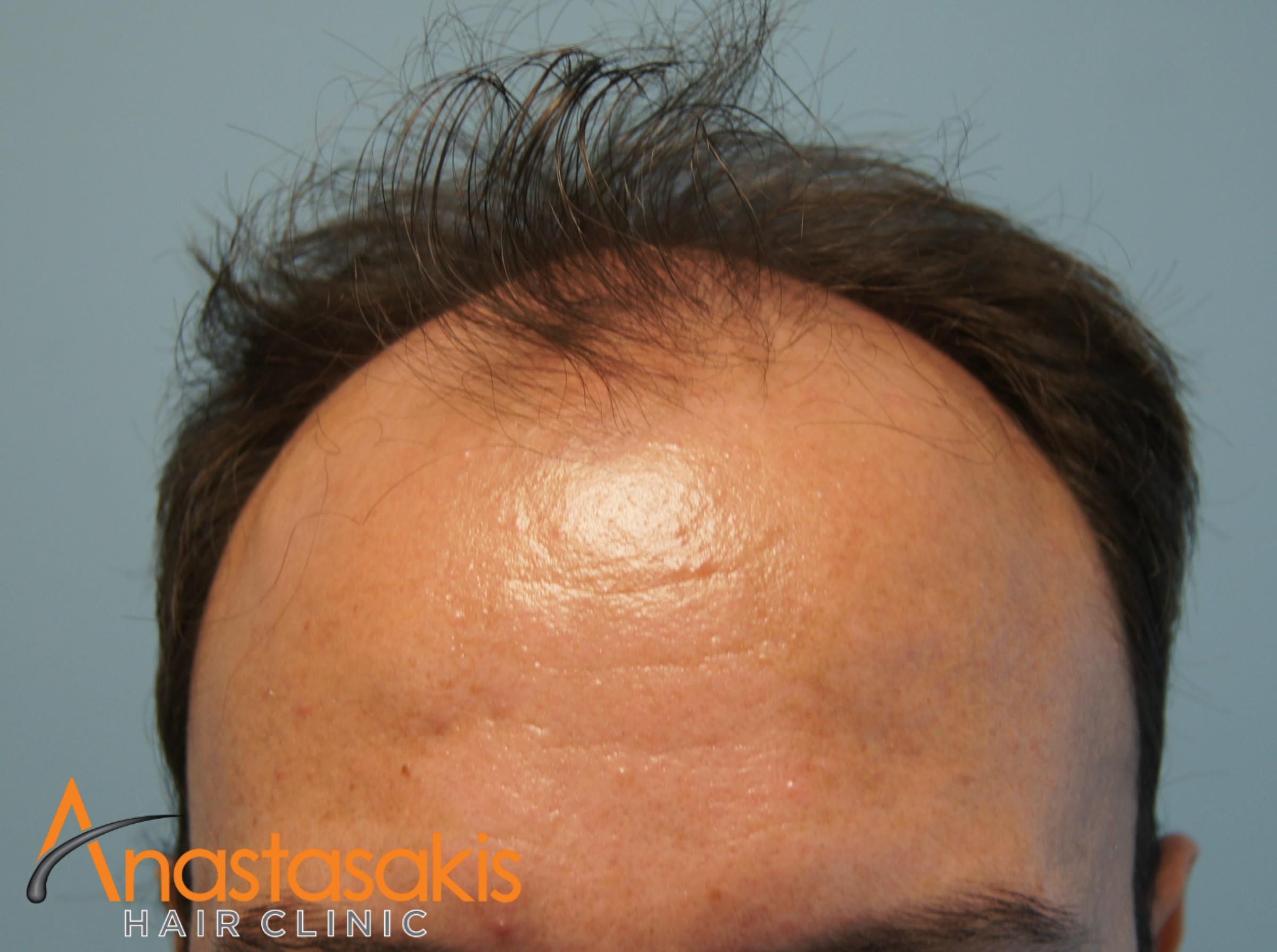 περιστατικό πριν την εμφύτευση μαλλιών fut με 3000fus hairline