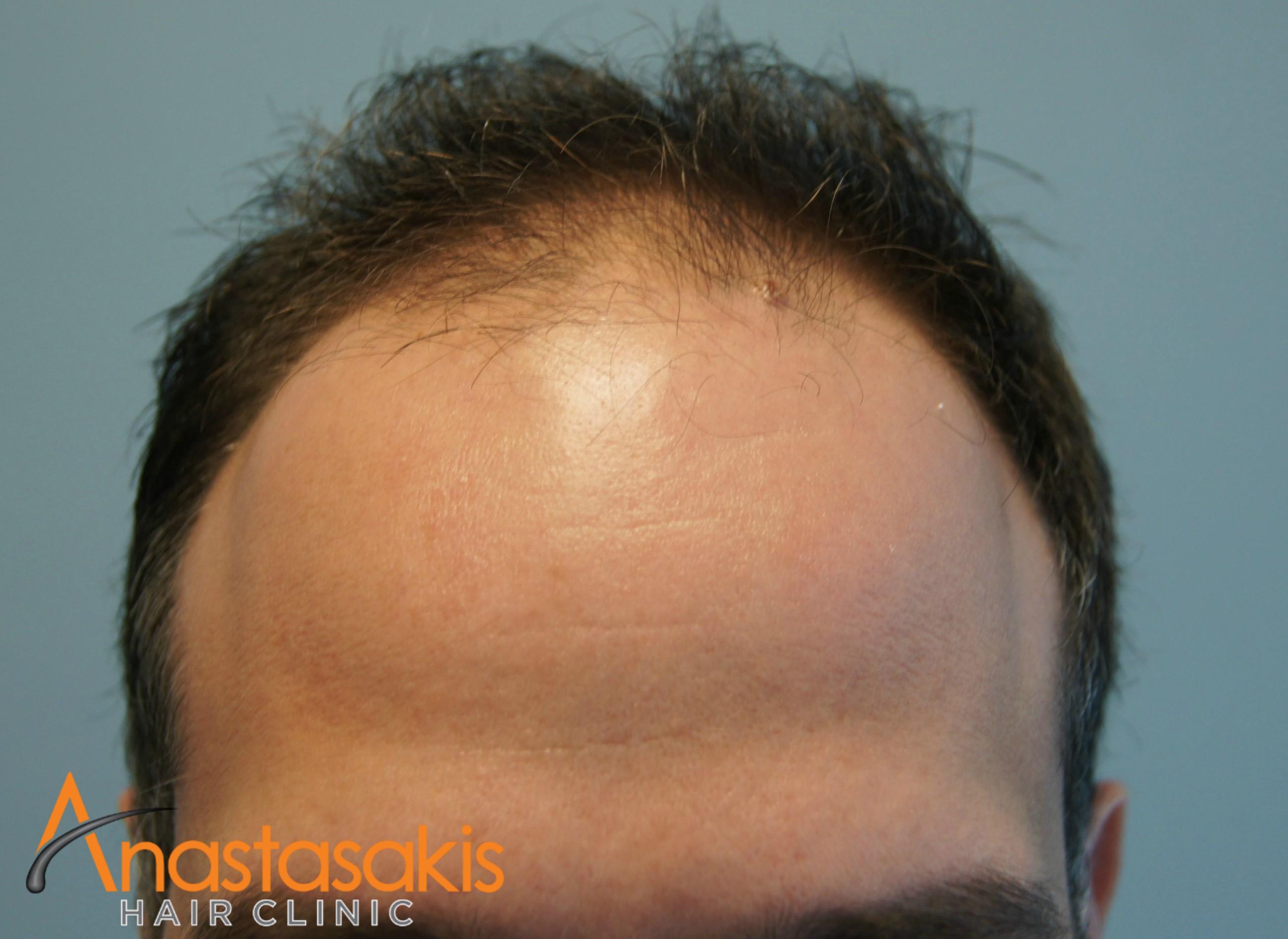 hairline ασθενους πριν τη μεταμοσχευση μαλλιων με 2200 fus