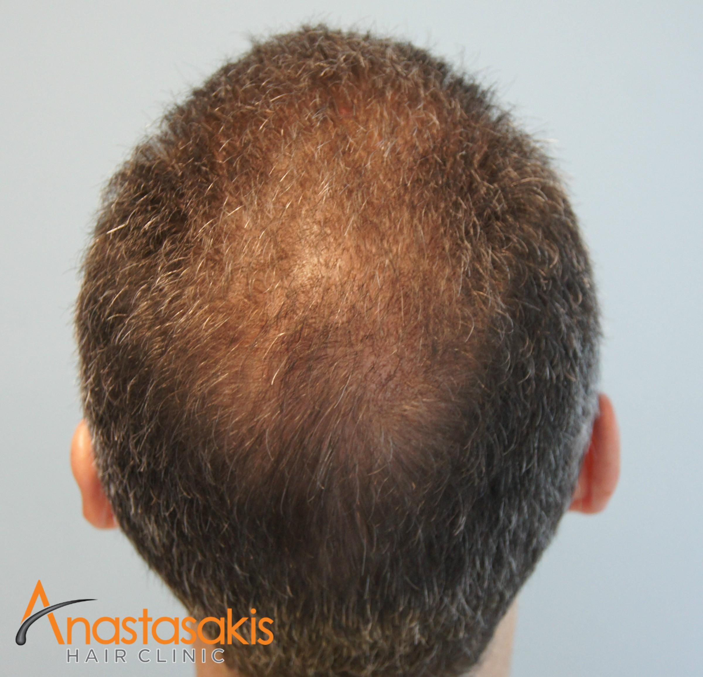 κορυφη ασθενους μετα τη μεταμοσχευση μαλλιων με 2300 fus