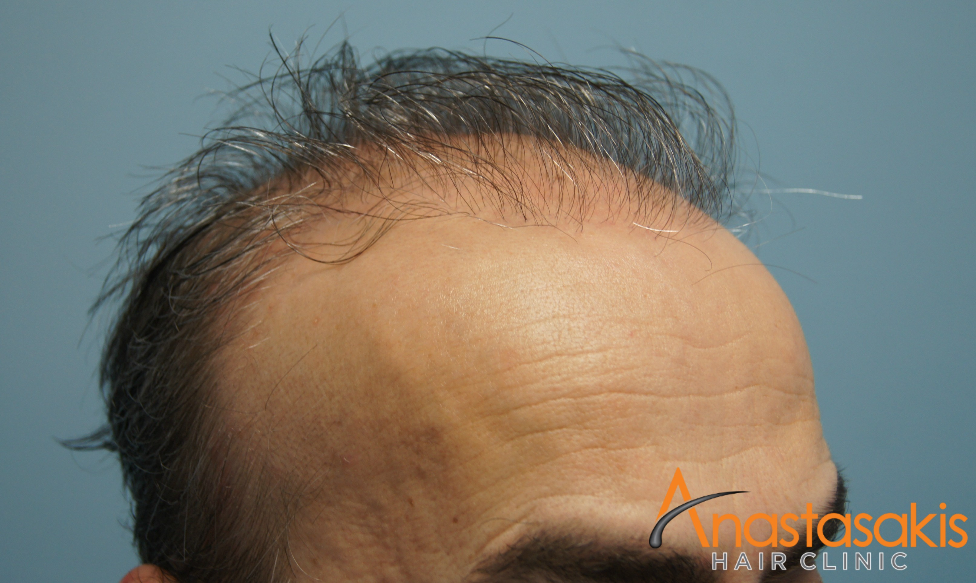 δεξι προφιλ ασθενους πριν τη μεταμοσχευση μαλλιων με 2500 fus