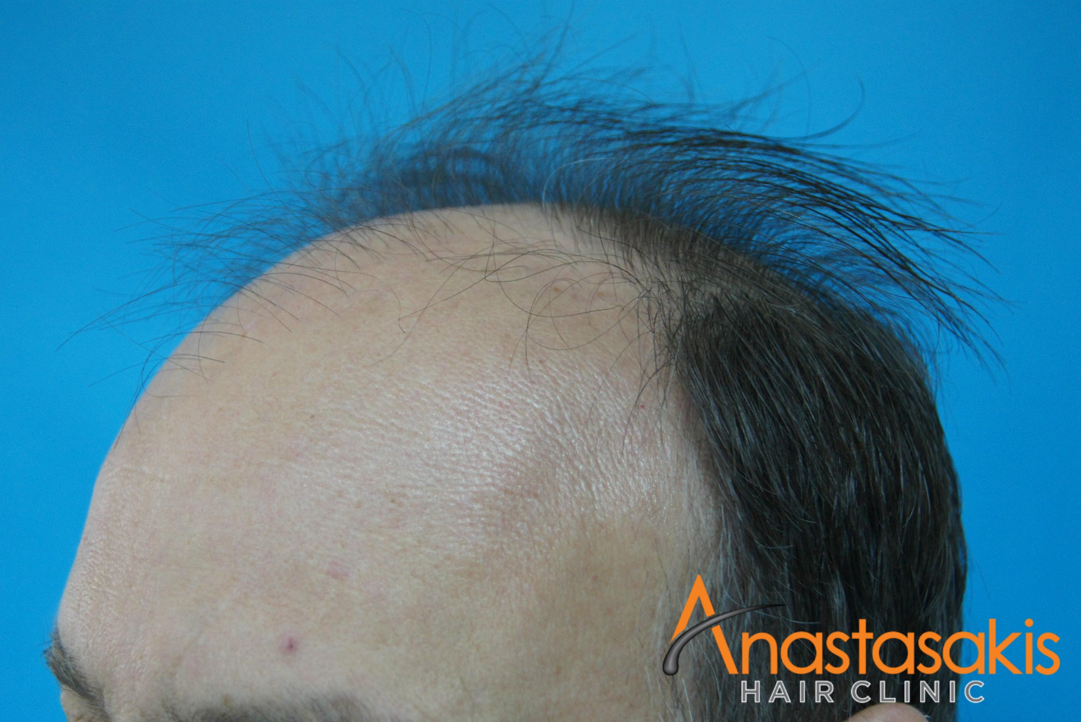 ασθενής πριν την μεταμόσχευση μαλλιών fut με 3500fus δεξί προφίλ
