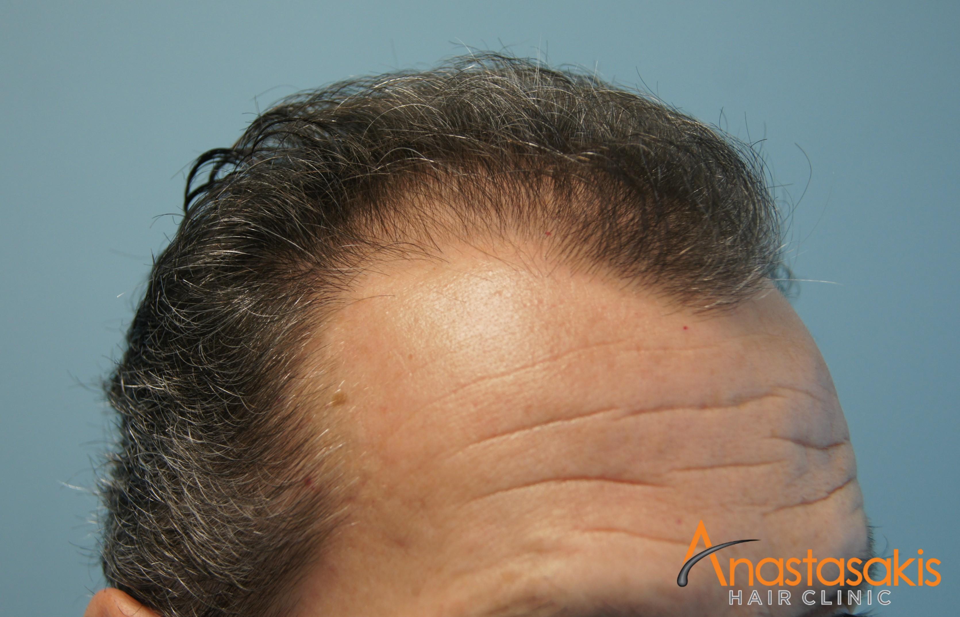 δεξι προφιλ ασθενους πριν τη μεταμοσχευση μαλλιων με 2300 fus