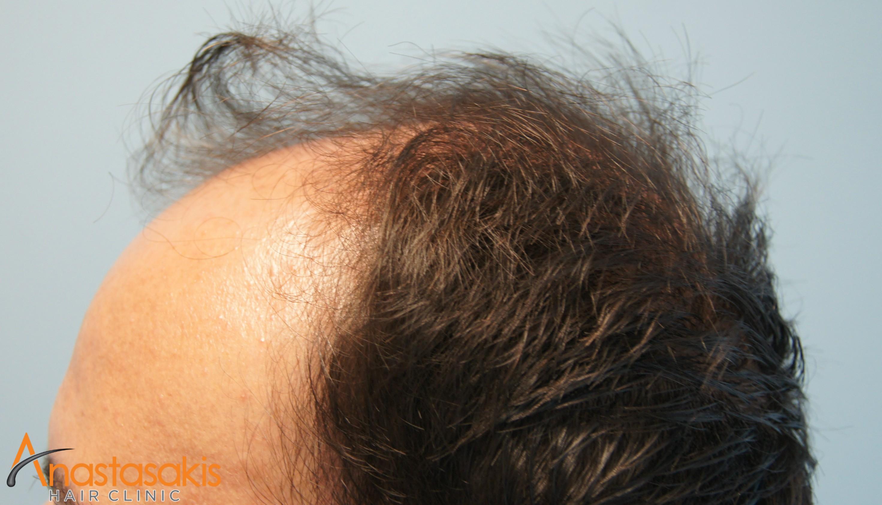 περιστατικό πριν την εμφύτευση μαλλιών fut με 3000fus αριστερό προφίλ