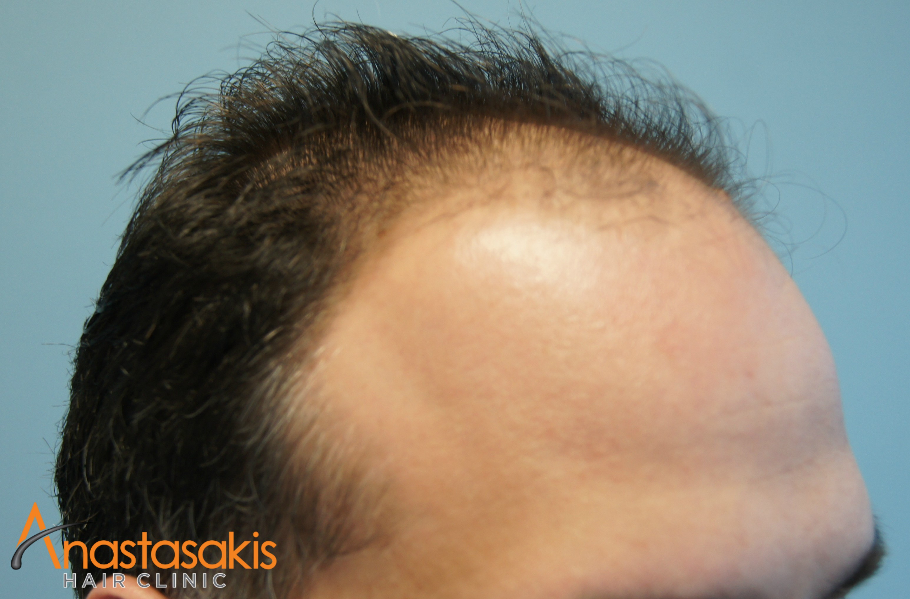 αριστερος κρόταφος ασθενους πριν τη μεταμοσχευση μαλλιων με 2200 fus