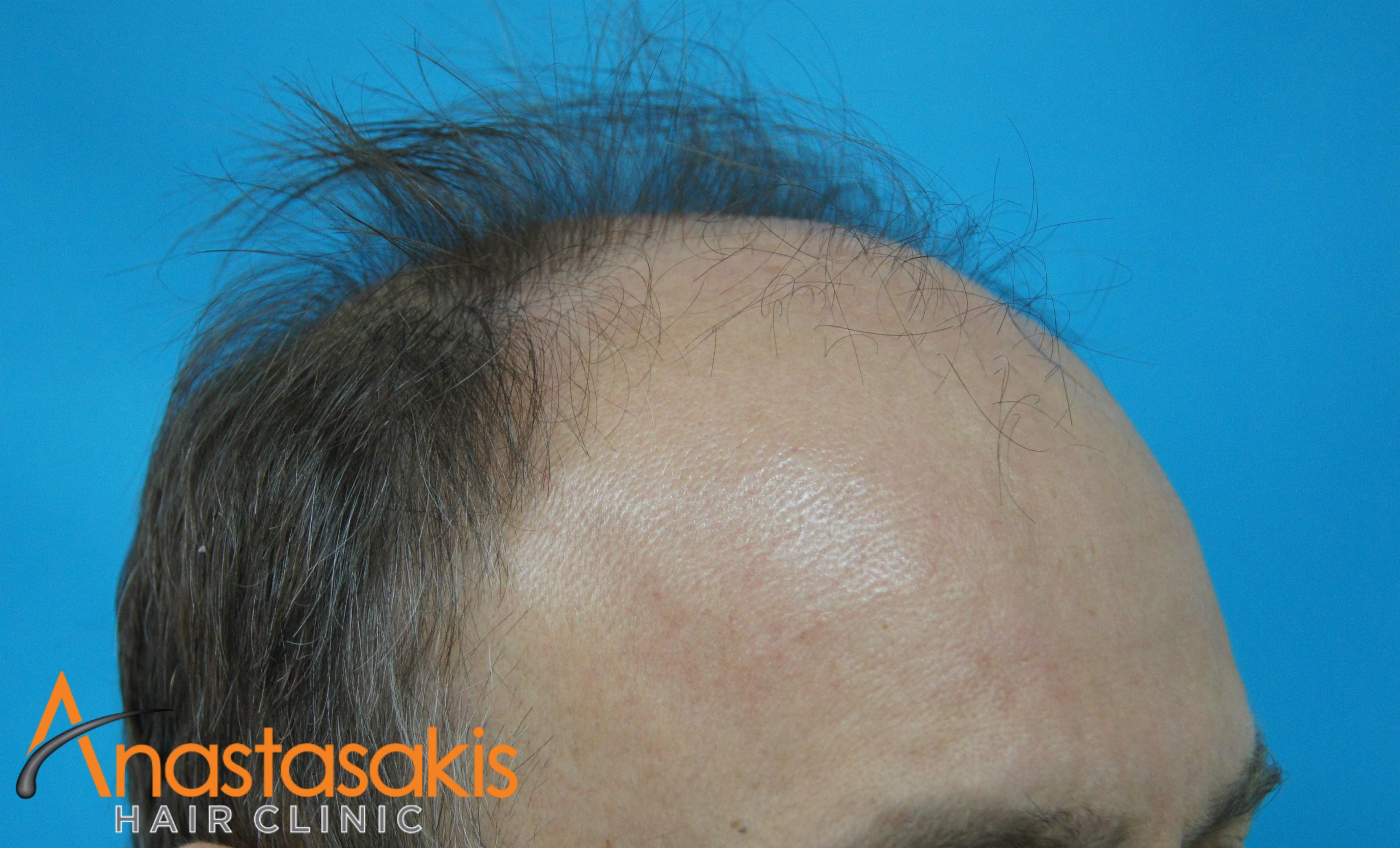 ασθενής πριν την μεταμόσχευση μαλλιών fut με 3500fus αριστερό προφίλ