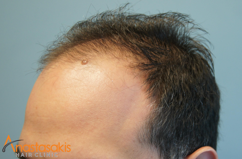 δεξης κροταφος ασθενους πριν τη μεταμοσχευση μαλλιων με 2200 fus