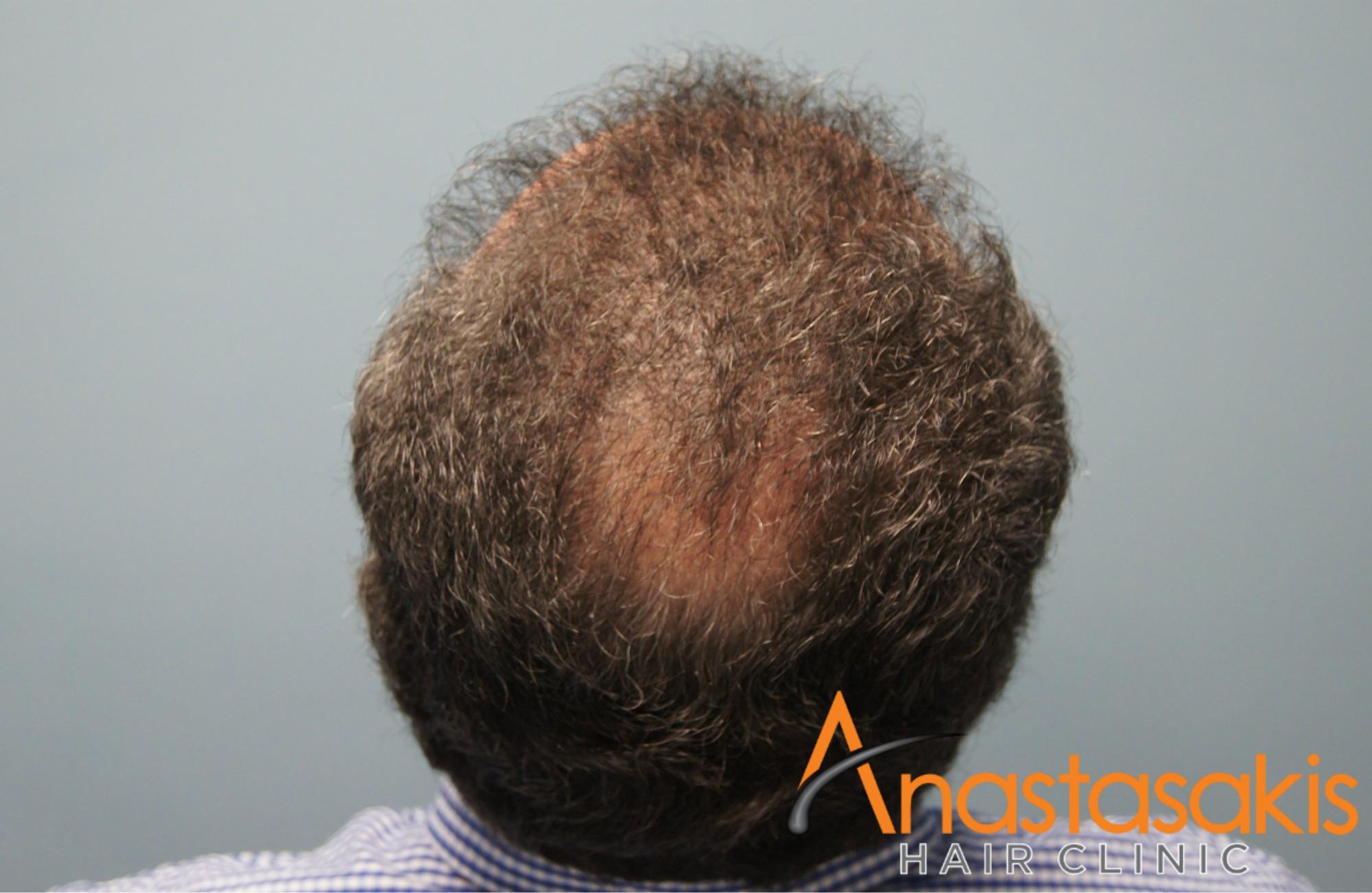 ασθενής μετά τη μεταμόσχευση μαλλιών με 2800fus birdview