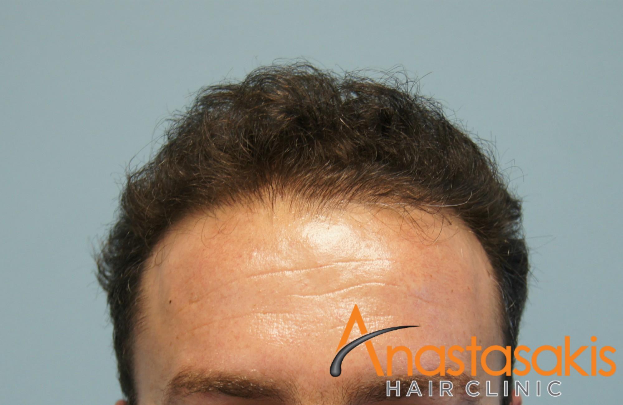 άνδρας μετά την εμφύτευση μαλλιών fut με 3500fus hairline