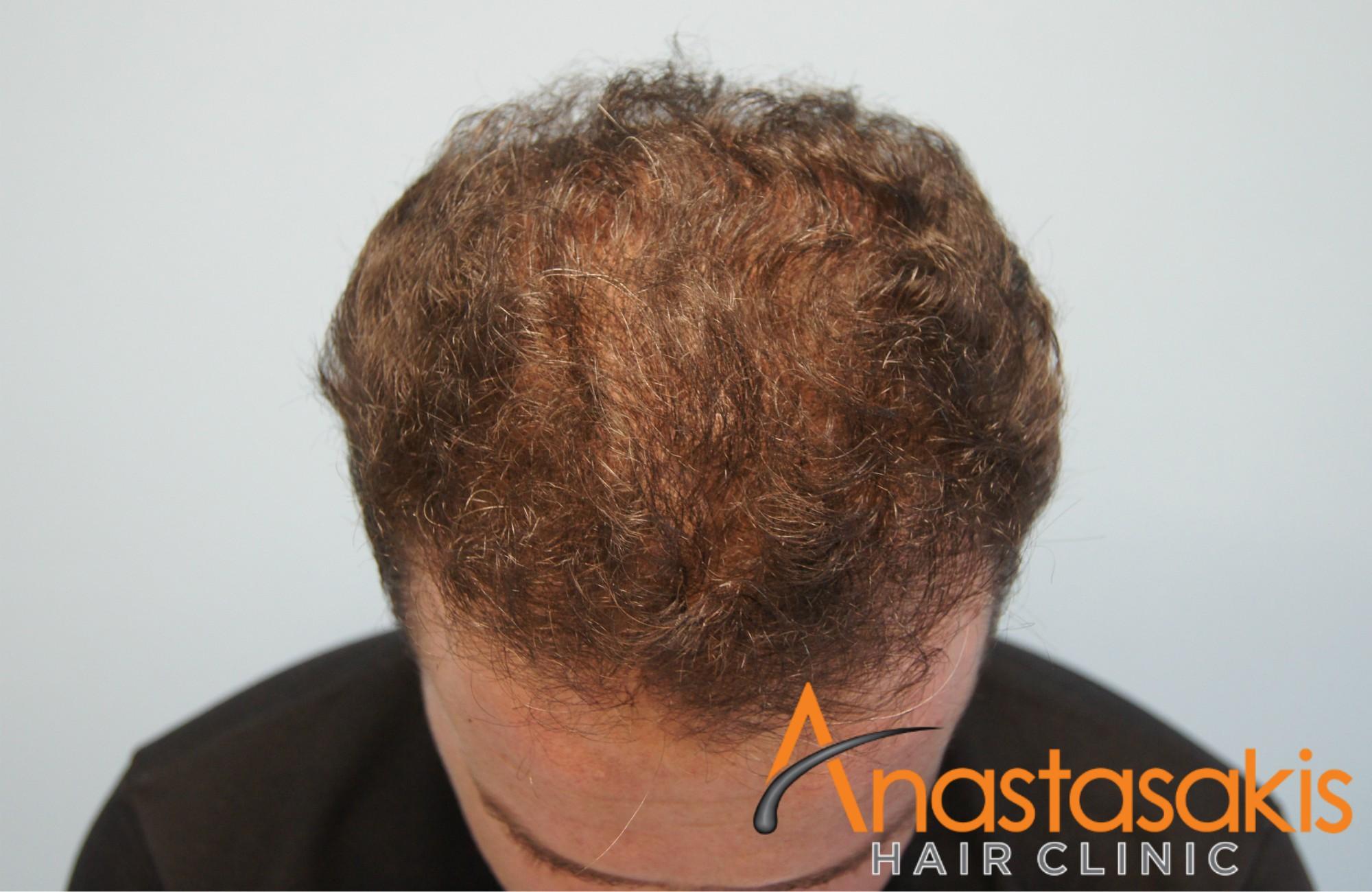 άνδρας μετά την εμφύτευση μαλλιών fut με 3500fus μπροστά προφίλ